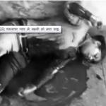 ग्रेटर नोएडा में खून से लथपथ लड़की तड़पती रही, लोग बनाते रहे VIDEO