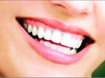 स्वस्थ दांतों के लिए स्वस्थ मसूढ़े जरूरी